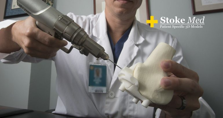Stoke Med to Provide Patient Specific 3D-Printed Models