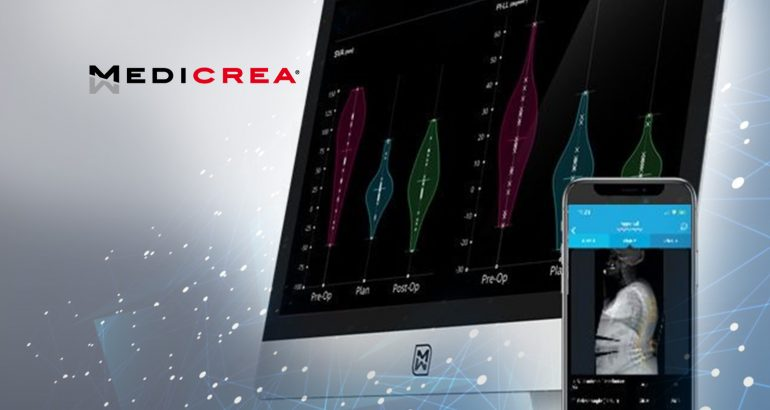 MEDICREA® Achieves 3,000 Surgery Milestone with UNiD ASI™ and Patient Specific Implants
